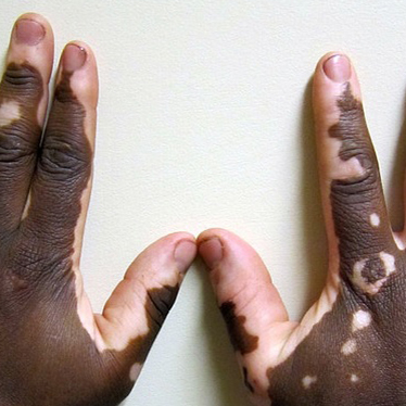 Coolibar - World Vitiligo Day