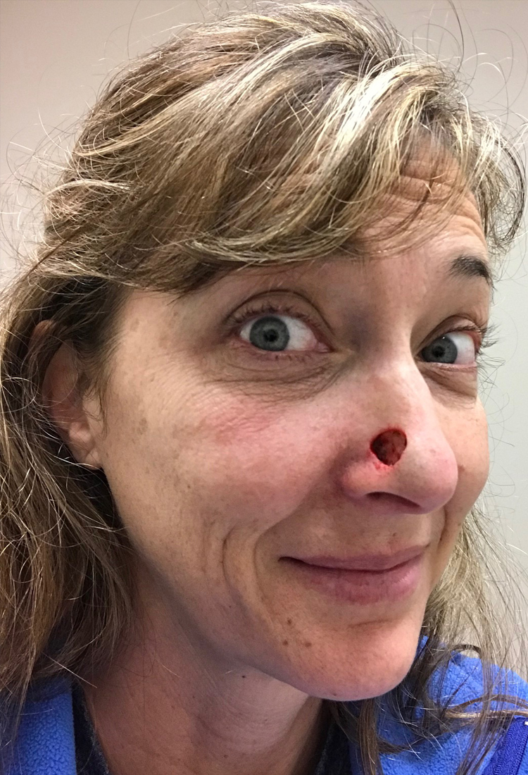 This Is Brave Life Post Viral Video With Janet Kj103 The Coolibar Sun Protection Blog